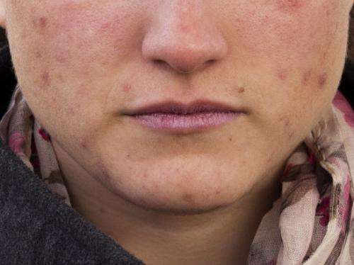 Acne treatment: Natural substance-based formula is more effective than artificial compounds