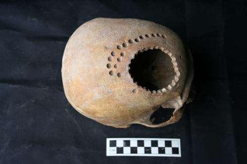Ancient cranial surgery