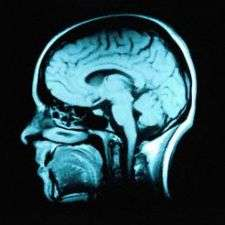 A peptide to protect brain function
