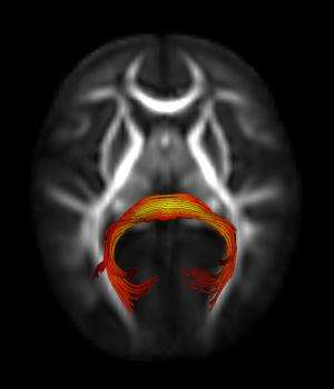 Atypical brain circuits may cause slower gaze shifting in infants who later develop autism