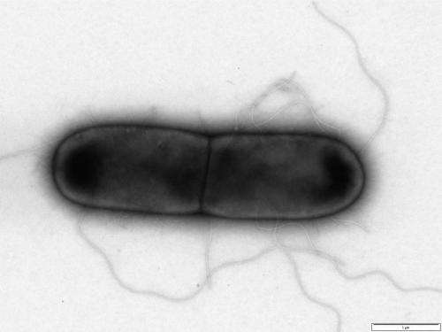Bacteria-eating viruses 'magic bullets in the war on superbugs'