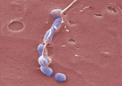 Bacterial toxin sets the course for infection