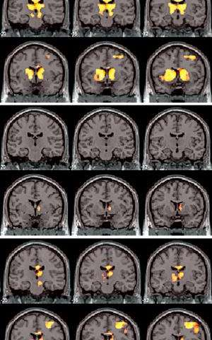 Brain imaging shows how prolonged treatment of a behavioral disorder restores a normal response to rewards