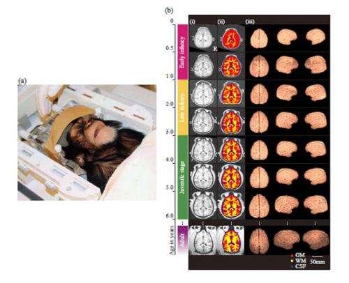 Cerebral development in chimpanzees: Human intelligence secrets revealed by chimp brain