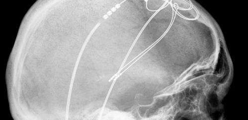 Deep brain stimulation: A fix when the drugs don't work
