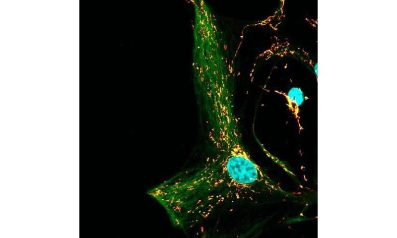 Defective cellular waste removal explains why Gaucher patients often develop Parkinson's disease