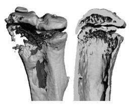 Emerging cancer drugs may drive bone tumors