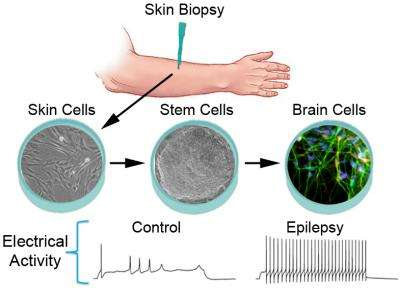 Epilepsy in a dish: Stem cell research reveals clues to disease's origins and possible treatment