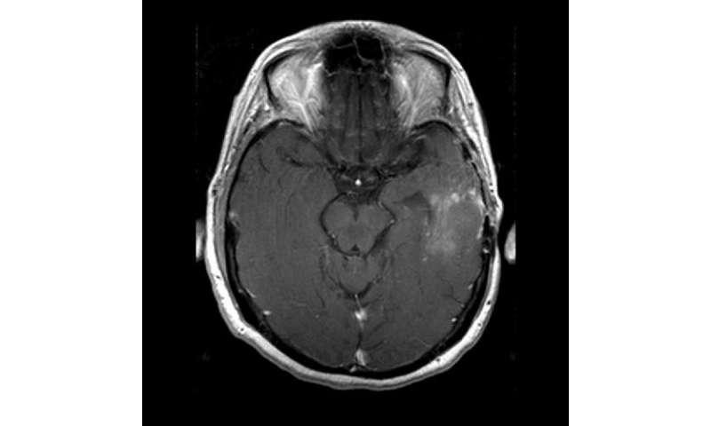 New MR analysis technique reveals brain tumor response to anti-angiogenesis therapy