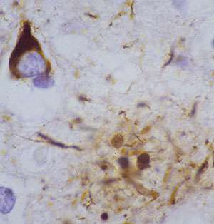 Genetic markers ID second Alzheimer's pathway