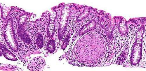 Gene variant linked to prognosis in inflammatory diseases