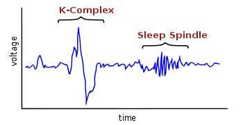 Distinguishing REM sleep from other conscious states