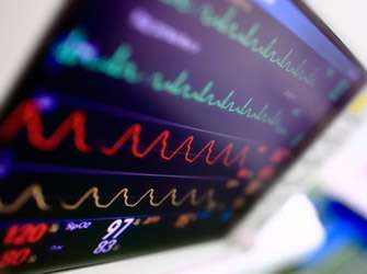 Heart surgery mortality rates significantly reduced