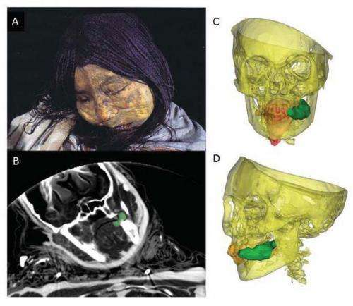 New study shows frozen mummy Inca children given coca and alcohol before sacrifice