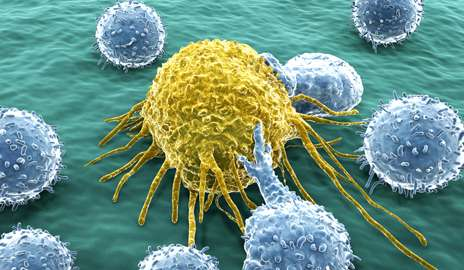 How cancer spreads: Metastatic tumor a hybrid of cancer cell and white blood cell