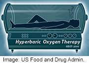 Hyperbaric oxygen chambers aren't cure-alls, FDA warns
