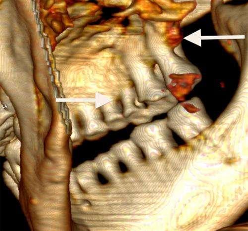 Iceman Otzi had bad teeth