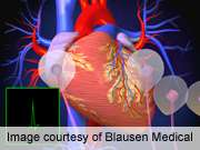 Inclusion of ABI may better identify vascular disease
