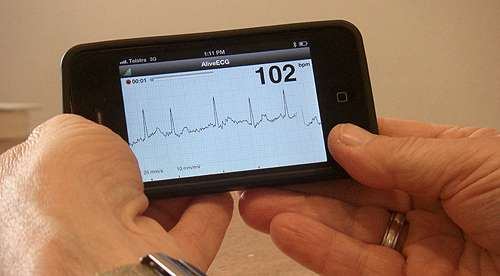 iPhone device detects heart rhythm problem that can cause stroke