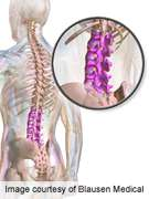 Lifestyle activities impact development of spinal stenosis