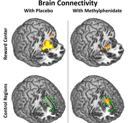Methylphenidate Modulates Brain-Circuit Connectivity in Cocaine-Addicted Individuals