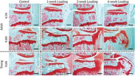 Model recreates wear and tear of osteoarthritis
