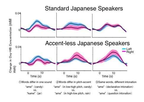 Learning dialects shapes brain areas that process spoken language