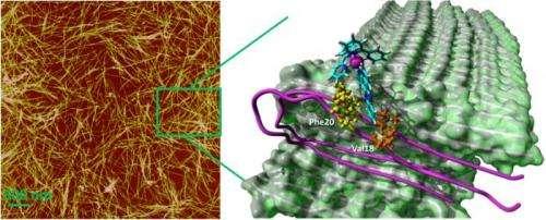 New clues illuminate Alzheimer's roots