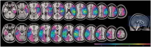 New model of how brain functions are organized may revolutionize stroke rehab