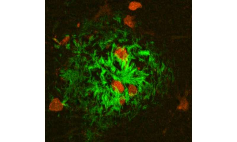 NIH-funded researchers create next-generation Alzheimer's disease model