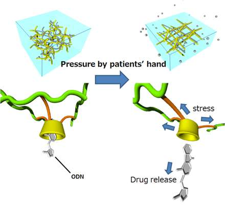 Novel drug delivery system releases drugs in response to compression by the patient's hand