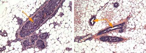 Novel noninvasive therapy prevents breast cancer formation in mice