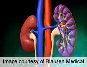 Novel racial/Ethnic differences found in diabetic kidney disease