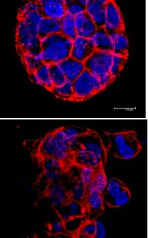 Penn study identifies new trigger for breast cancer metastasis