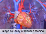Post-CABG risk of death increased for blacks with PAD