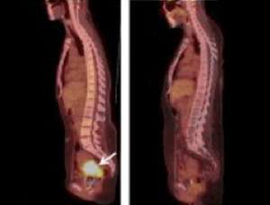 Pretesting cervical tumors could inform treatment