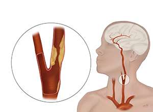 Procedure to open blocked carotid arteries tested