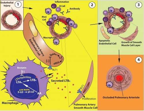 Blocking molecular pathway reverses pulmonary hypertension in rats