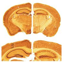 Reeler Mouse Brain