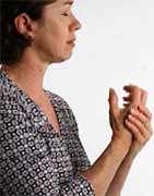 Rheumatoid arthritis can be costly