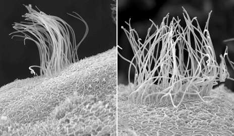 Root of birth defects grounded in early embryonic development