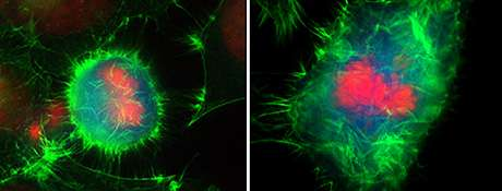 Scientists study transient degradation of an actin regulator