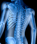 Spinal fusion material, BMP, increases risk of benign tumors, not cancer
