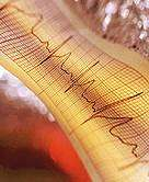 Study: mega vitamins won't help after heart attack, chelation treatment might