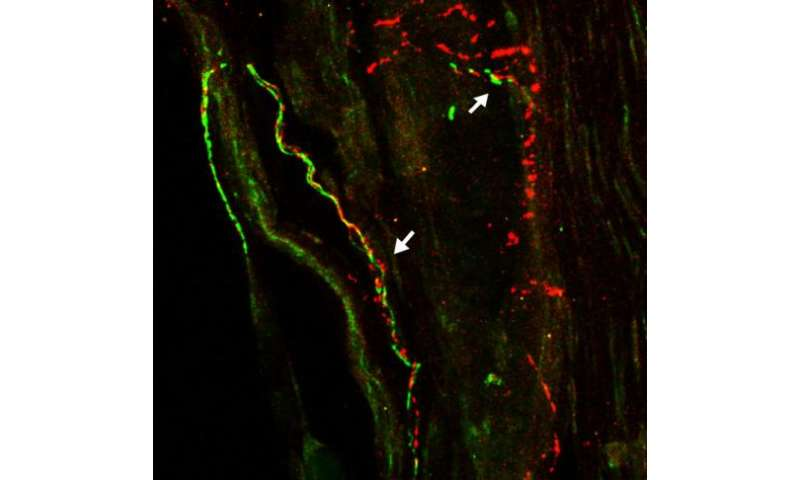 Study points to role of nervous system in arthritis
