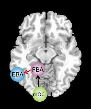 'Connection error' in the brains of anorexics