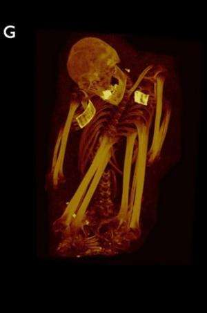 This 3D MIP shows a mummified woman aged 41-44 from ancient Peru, who was excavated from Huallamarca, Peru