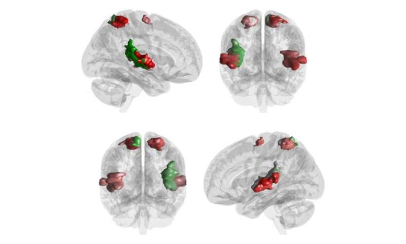 This is your brain on Vivaldi and Beatles
