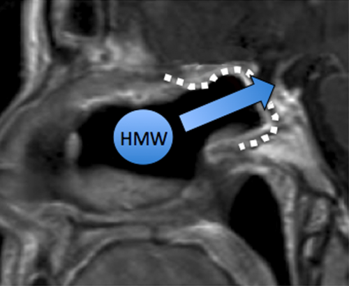 Transmucosal route to the brain