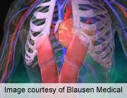 Tricuspid regurgitant jet velocity up in childhood cancer survivors